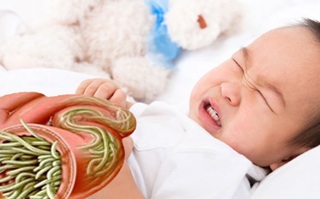 Trẻ bị nhiễm giun kim